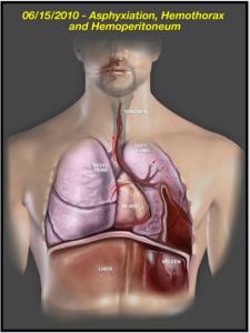 Medical-Legal Animation