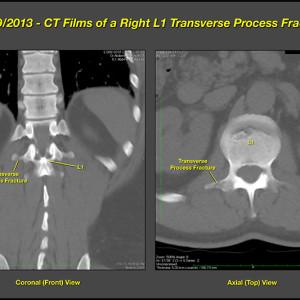 L1 Fracture enlarge