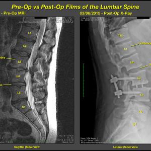 Pre and PostOp enlarge
